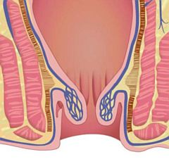 Hemoroidi stupanj 2
