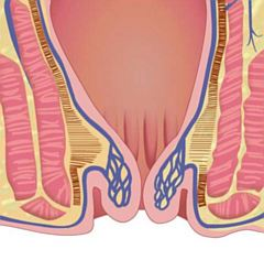 Hemoroidi stupanj 3