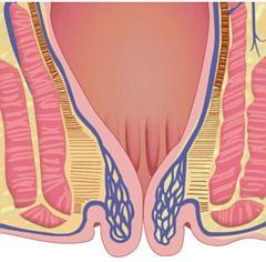 Hemoroidi stupanj 4