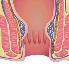 Vanjski hemoroidi - kožni nabori